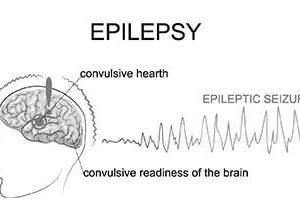 Epilepsy and Emergency Medication Awareness